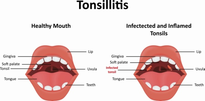 Tonsillitis-Treatment.jpg
