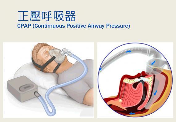 正壓呼吸器.jpg