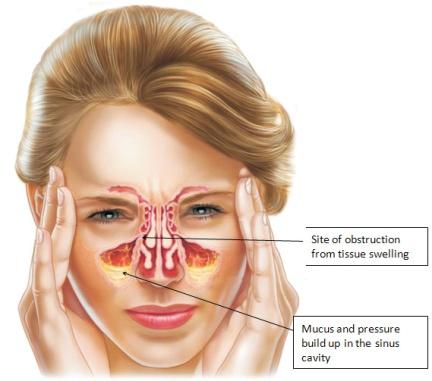 nasal-congestion.jpg